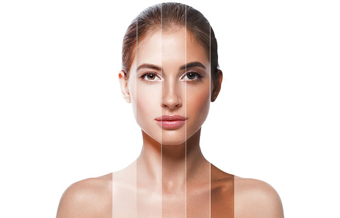 Do Acne Treatments Differ in Skin Complexions?